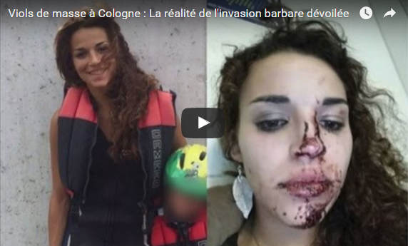 german-girl-cologne-bloodied-face