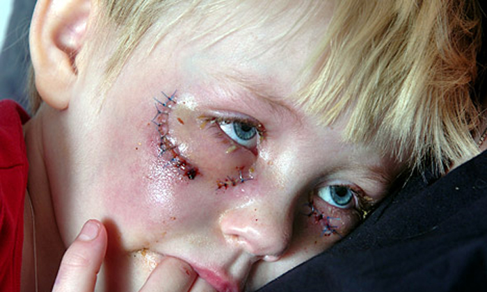 helsingborg-sweden-blue-eyed-boy-beaten