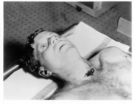 jfk-autopsy-bw-throat-wound