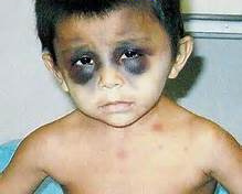 torture_iraqi-boy-abu-ghraib-black-eyes